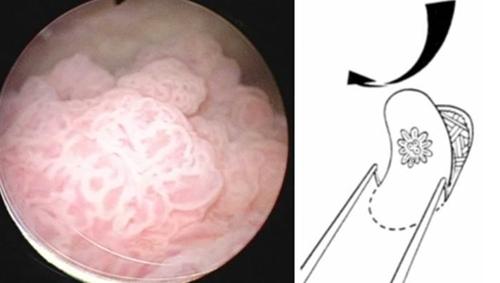 비근침윤성 방광암과 내시경적 절제