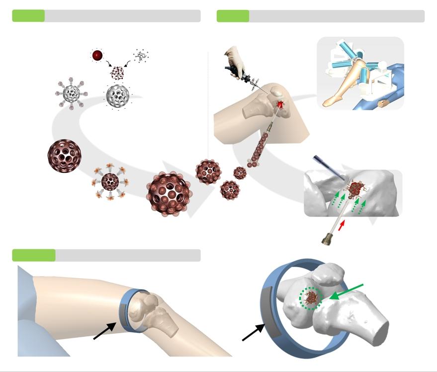 줄기세포 탑재 마이크로 로봇으로 무릎연골 재생 첫 성공