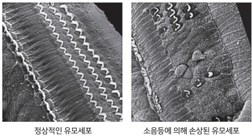 좌측은 정상적인 유모세포. 마치 잡초나 털처럼 생겼다고 해서 유모세포라고 부른다. 반면 우측은 소음성 난청으로 인해 손상된 유모세포. 마치 모발이 빠진것 처럼 손상돼 있다 [변해원 교수 제공]