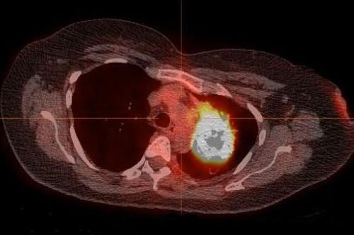 한 번도 담배를 피우지 않은 폐암 환자의 폐종양 방사선 사진. 미국 워싱턴대 의대 연구진은 흡연 미경험 폐암 환자의 78%~92%가 특정 변이 표적 항암제로 미국 식품의약국(FDA) 승인을 받은 정밀 약물로 치료할 수 있다고 밝혔다. [WASHINGTON UNIVERSITY SCHOOL OF MEDICINE 제공. 재판매 및 DB 금지]